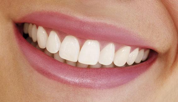 Una sonrisa perfecta, la clave para vender más